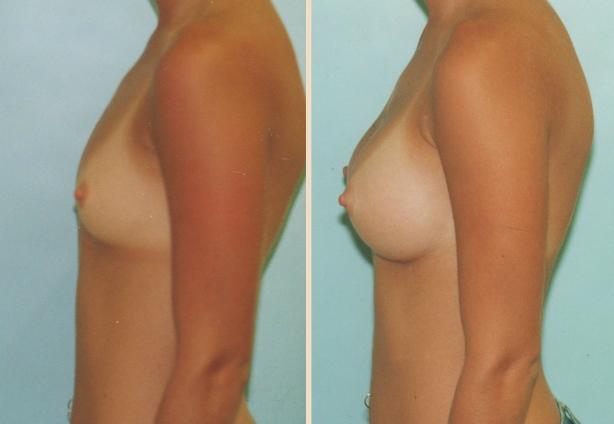 Breast Augmentation – Case 2 Side