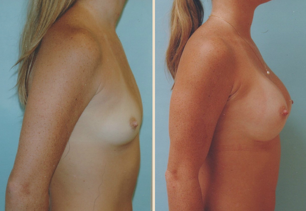 Breast Augmentation – Case 1 Side