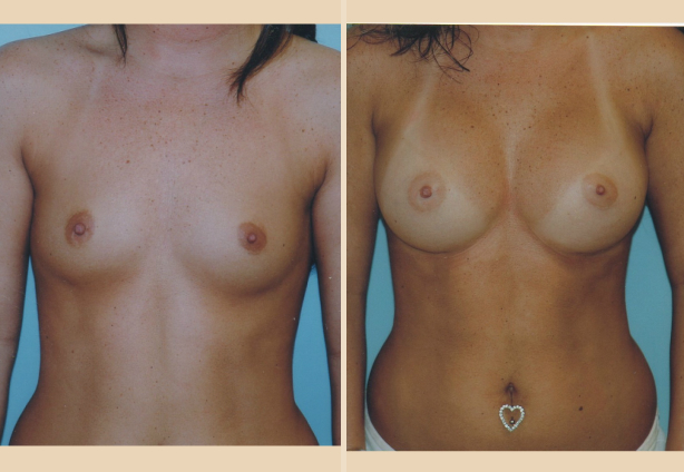 Breast Augmentation - Case 4 Front