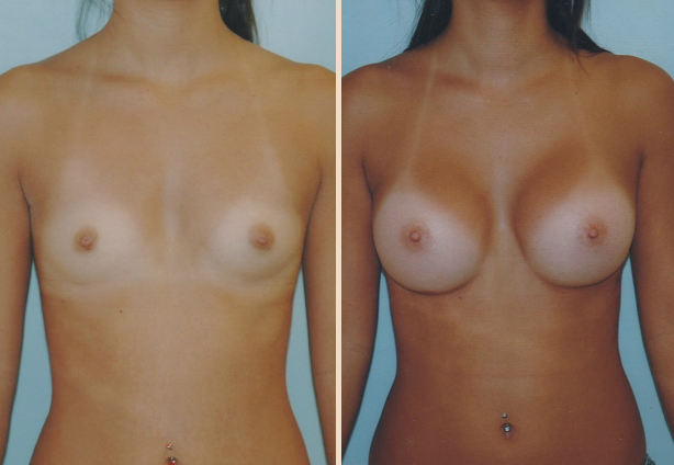 Breast Augmentation - Case 3 Front