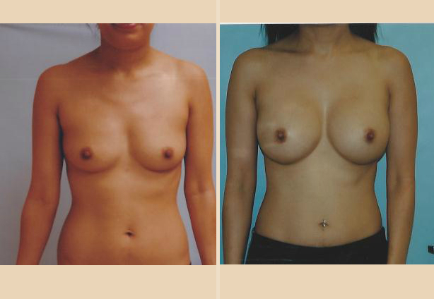 Breast Augmentation – Case 10 Front