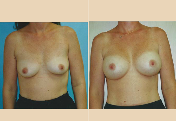 Breast Augmentation – Case 11 Front Side