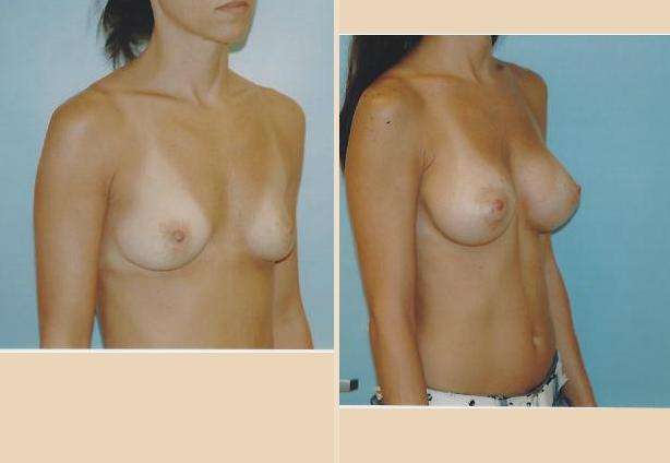 Breast Augmentation - Case 12 Oblique Side