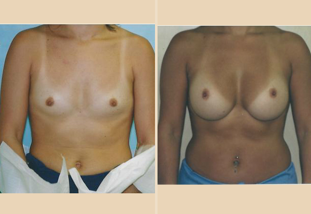 Breast Augmenatation - Case 13 Front Side