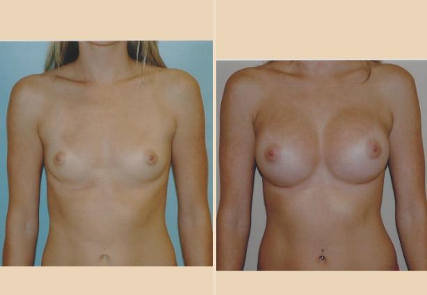 Breast Augmentation - Case 14 Front Oblique