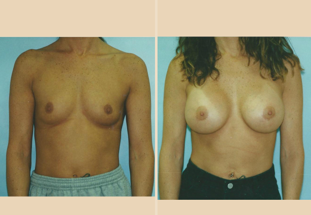 Breast Augmentation – Case 15 Front Oblique