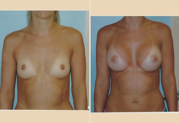 Breast Augmentation – Case 16 Front Side