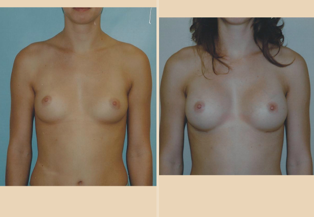 Breast Augmentation – Case 17 Front Oblique