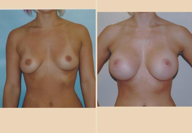 Breast Augmentation – Case 18 Front Oblique