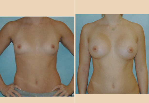 Breast Augmentation – Case 19 Front