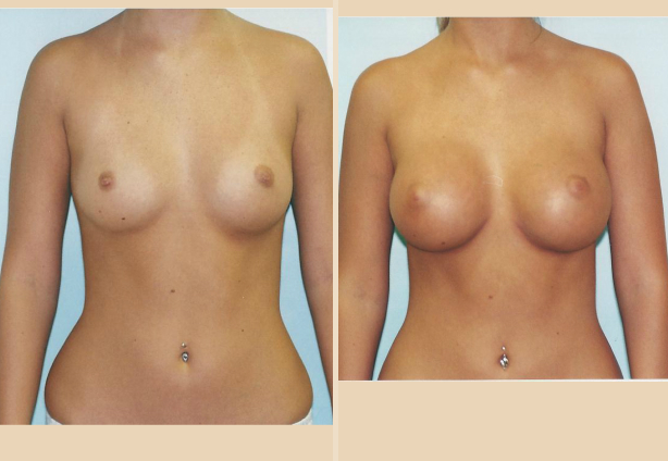 Breast Augmentation – Case 20 Front