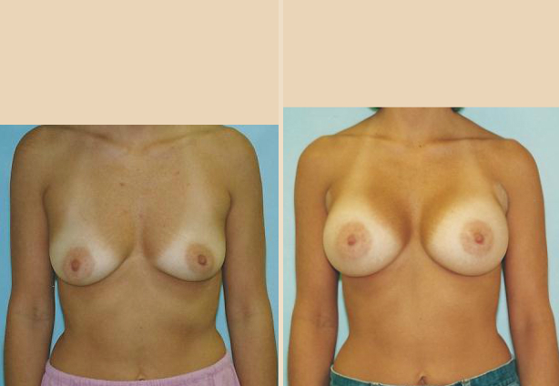 Breast Augmentation – Case 21 Front Side