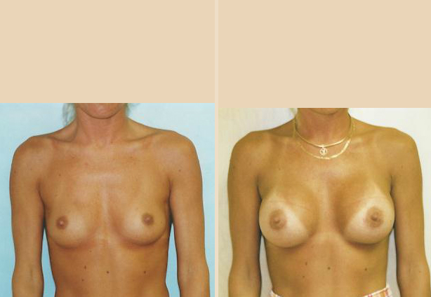 Breast Augmentation – Case 22 Front Oblique