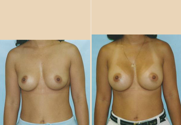 Breast Augmentation – Case 23 Front Side