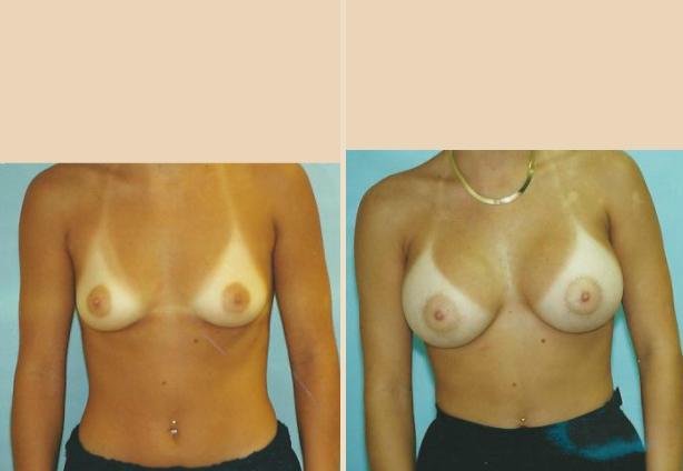 Breast Augmentation – Case 24 Front Oblique