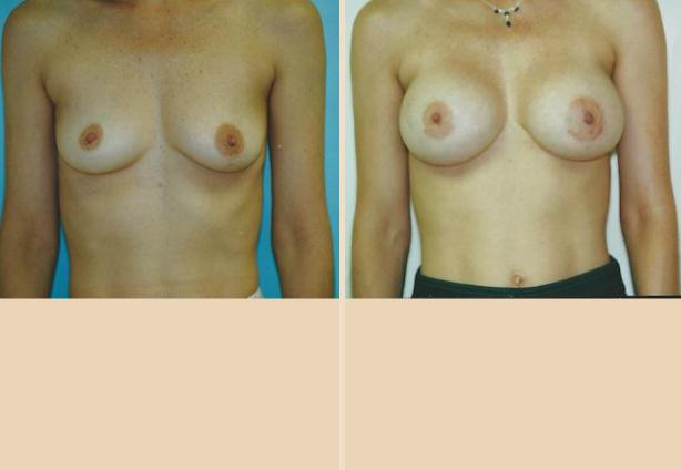Breast Augmentation – Case 25 Front Oblique