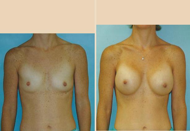 Breast Augmentation – Case 26 Front Oblique