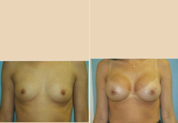 Breast Augmentation – Case 27 Front