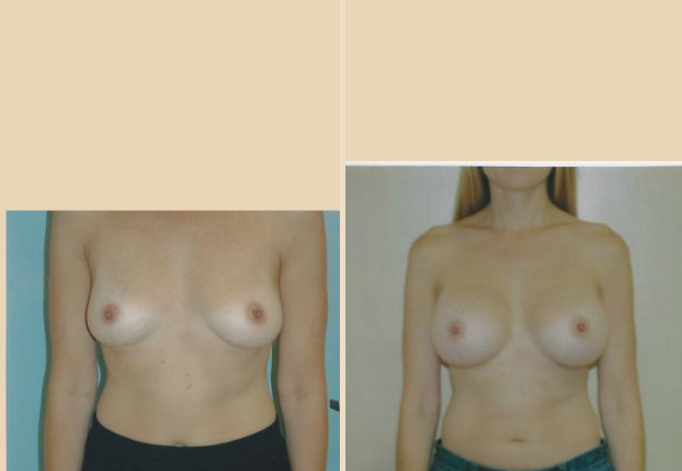 Breast Augmentation – Case 28 Front
