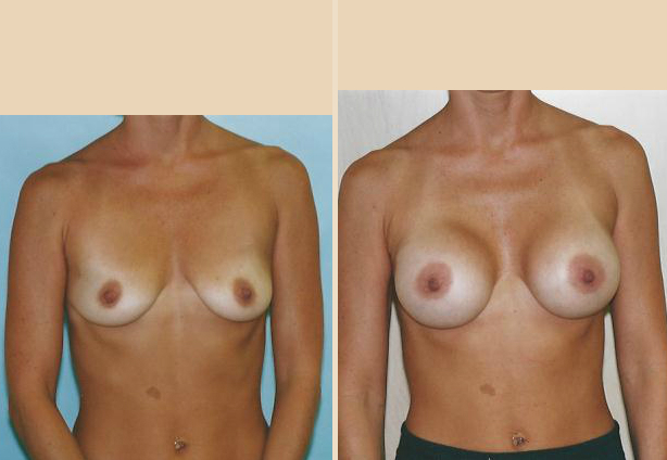 Breast Augmentation – Case 29 Front