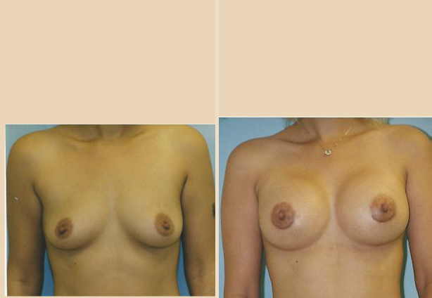 Breast Augmentation – Case 30 Front