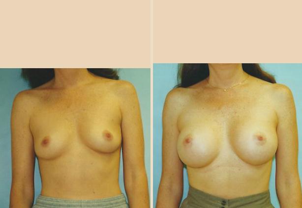Breast Augmentation – Case 31 Front Oblique