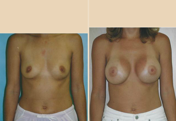 Breast Augmentation – Case 32 Front