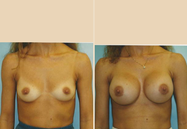 Breast Augmentation – Case 33 Front