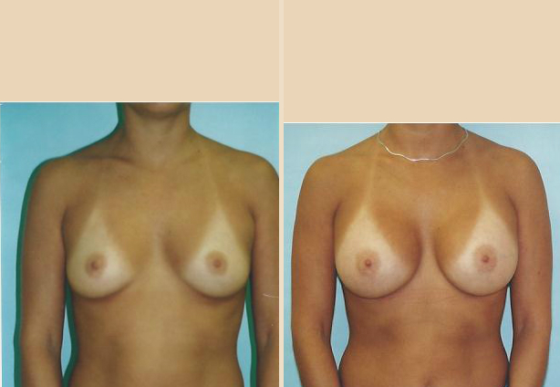 Breast Augmentation – Case 34 Front Side