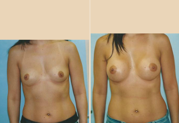 Breast Augmentation – Case 35 Front