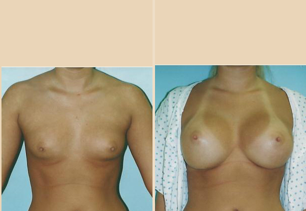 Breast Augmentation – Case 36 Front