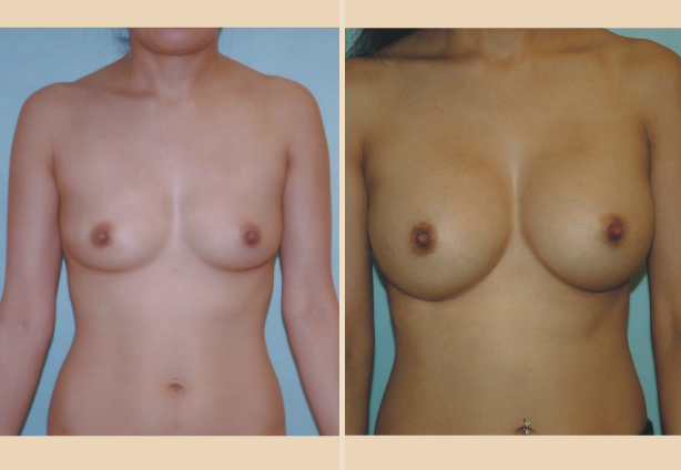 Breast Augmentation - Case 6 Front