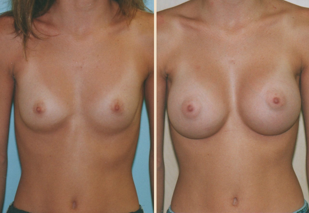 Breast Augmentation - Case 7 Front