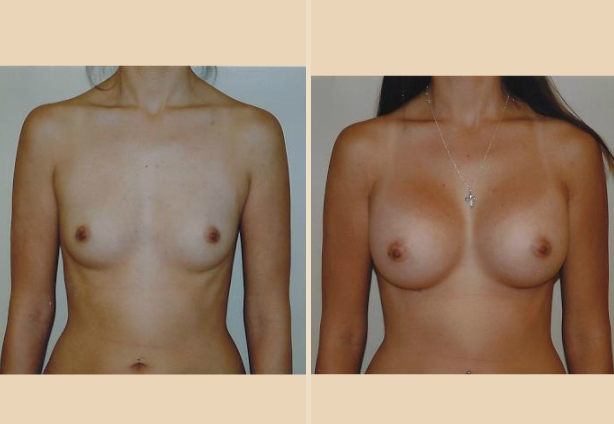 Breast Augmentation - Case 8 Front