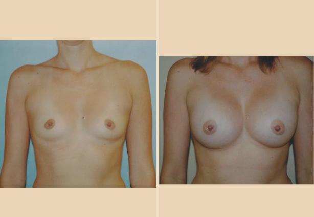 Breast Augmentation - Case 9 Front Oblique