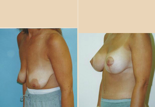 Breast Lift - Case 10 Oblique Side