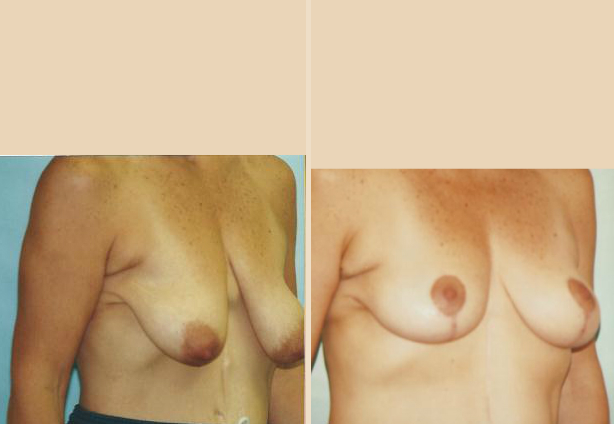 Breast Lift - Case 12 Oblique Side