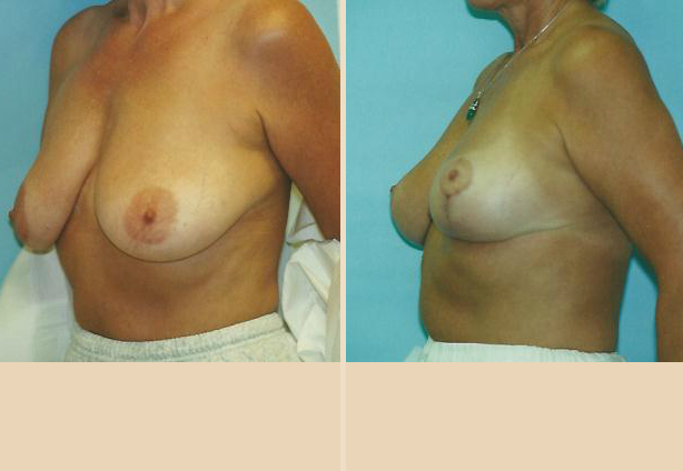 Breast Lift - Case 13 Oblique