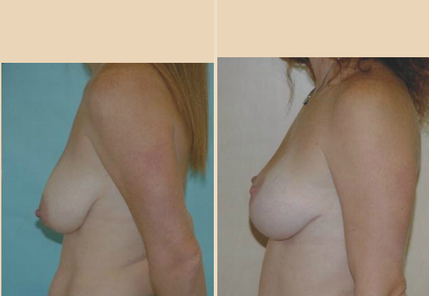 Breast Lift - Case 14 Side