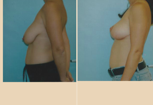 Breast Lift - Case 15 Side