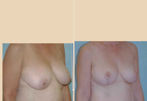 Breast Lift - Case 16 Oblique
