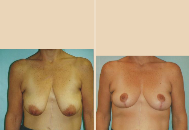 Breast Lift - Case 17 Side