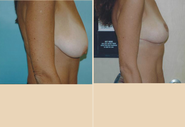 Breast Lift - Case 18 Side
