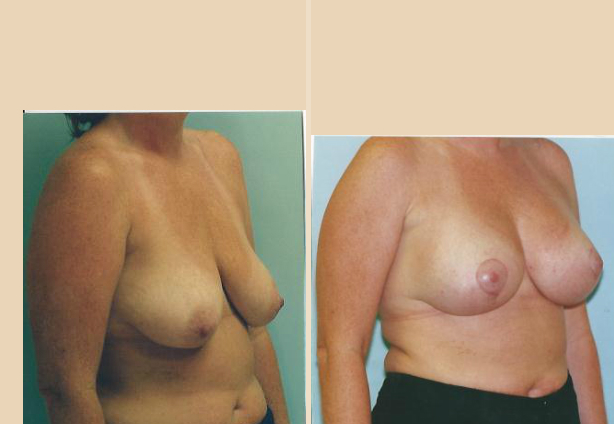 Breast Lift - Case 19 Oblique