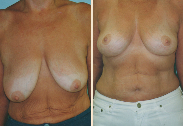 Breast Lift - Case 2 Front Oblique