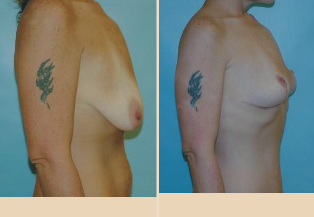 Breast Lift - Case 20 Side