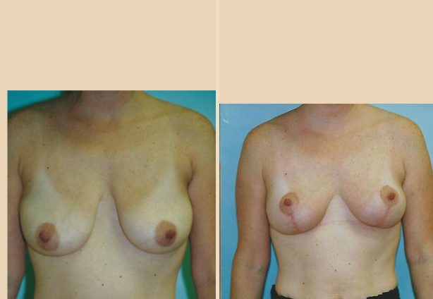 Breast Lift - Case 21 Front