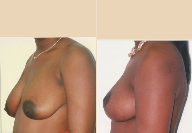 Breast Lift - Case 22 Side