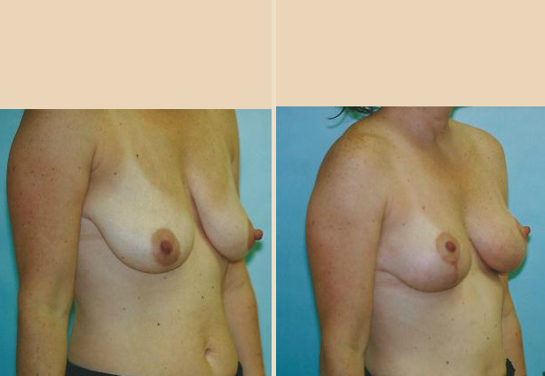 Breast Lift - Case 23 Oblique