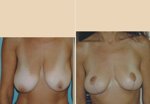 Breast Lift - Case 25 Front